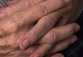 Jeden szczegół na skórze może zdradzić, czy twoja wątroba jest zdrowa