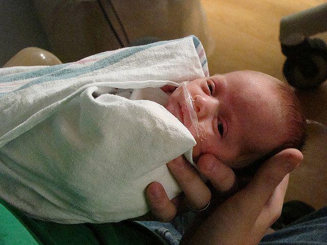 Wcześniak zaraz po narodzinach