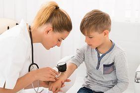 Znamiona u dziecka - kiedy iść do lekarza?