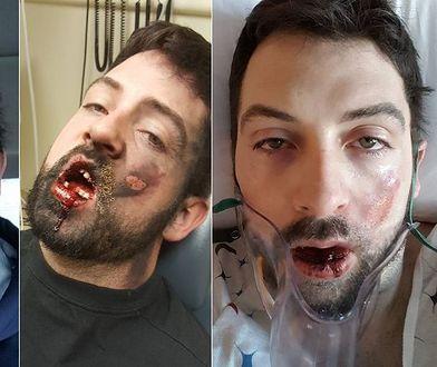 Stracił 7 zębów po tym, jak e-papieros wybuchł mu w twarz
