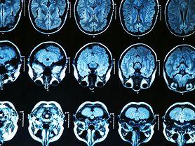 Parkinsonizm młodzieńczy dotyka osób poniżej 20 roku życia. Zobacz czym się objawia