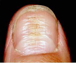 Cukrzyca może objawiać się na paznokciach. Nie lekceważ takich zmian
