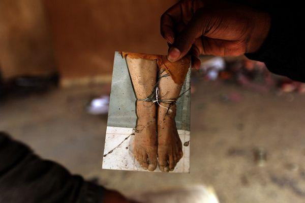 Lekarz sądowy dla AI o sposobach tortur: przed przesłuchaniem strzelano więźniom w stopy