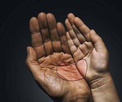 Spójrz na swoje dłonie. Wyczytasz z nich prawdę o sercu