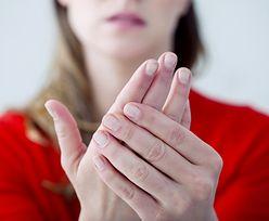 Palce u rąk lub nóg drętwieją. Choroba atakuje młode kobiety