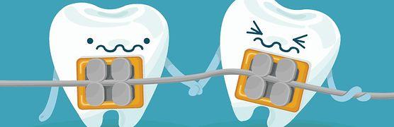 Cierpisz na wadę zgryzu? Sprawdź, jakie rodzaje aparatów ortodontycznych można nosić. Niektóre są praktycznie niewidoczne