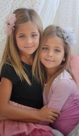 Nazwano je najpiękniejszymi bliźniaczkami na świecie