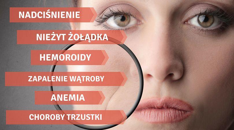 Choroby wyczytasz z twarzy