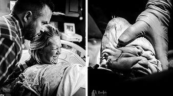 Cud narodzin - zobacz, co dzieje się z główką dziecka w trakcie porodu!