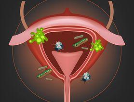 Obejrzyj wideo na temat zapalenia pęcherza moczowego u kobiet