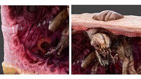 Przerażające! Właśnie tak wygląda rak skóry