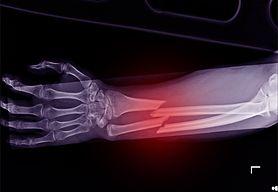 Złamania kości przedramienia