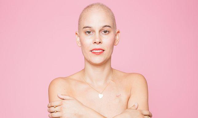 Amanda Niello pokazała swoje zdjęcia po mastektomii
