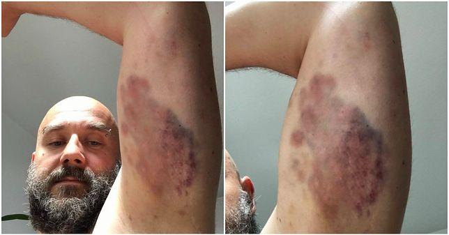"""""""Oto efekt konfrontacji ze Strażą Marszałkowską"""". Protestujący z Sejmu publikują zdjęcia swoich ran"""