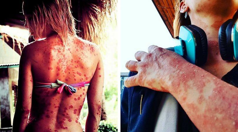 Całe ciało Giorgii pokryte jest plamami. To wynik łuszczycy, która zaatakowała nastolatkę