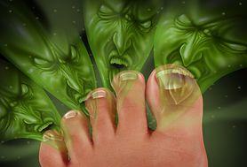 Podpowiadamy, jak pokonać wstydliwy problem potliwości stóp