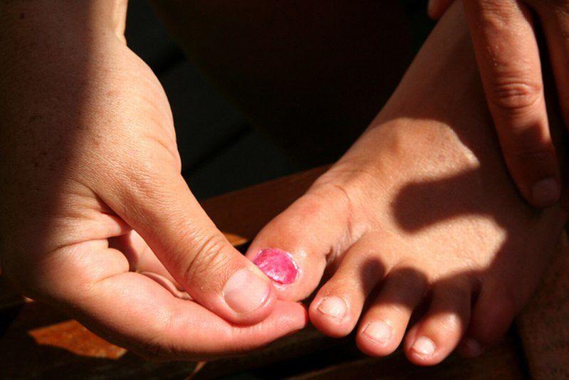 Pielęgnacja skóry dłoni i stóp