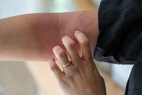 Najczęstsze przyczyny swędzenia skóry - czy to może być choroba?