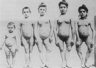 Zdjęcie osób z krzywicą