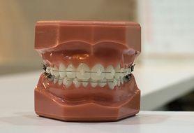 Sprawdź, czym są aparaty ruchome na zęby