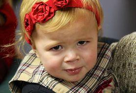 Co może powodować zapalenie spojówek u maluchów?