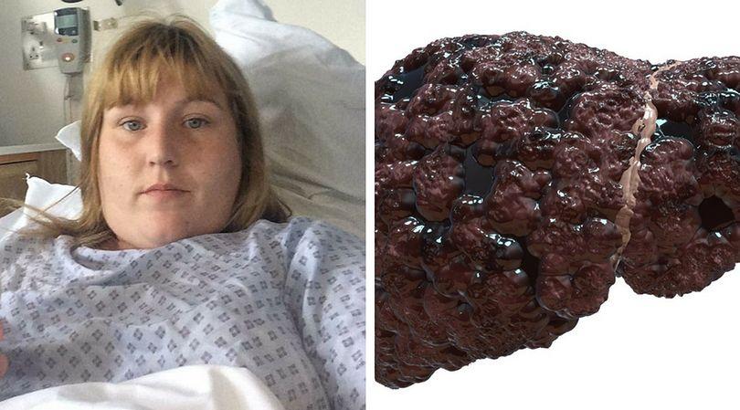 26-letnia Maria Allwood doznała poważnych uszkodzeń wątroby