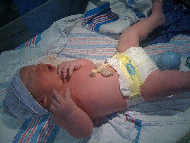 Dziecko zaraz po narodzinach