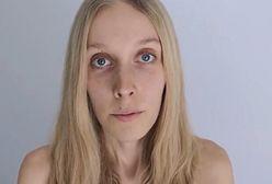 Agnieszka przeżyła 22 dni bez jedzenia. Pokazuje, jak wygląda jej ciało