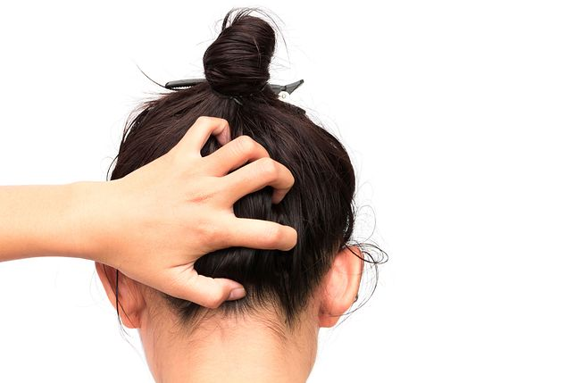 Swędząca skóra głowy niekiedy może być poważnym problemem