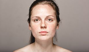 Blizny po trądziku to problem wielu młodych ludzi