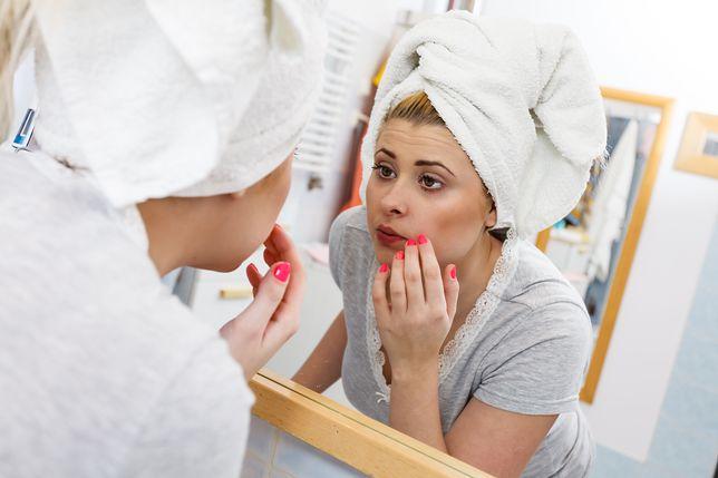 Dzięki odpowiednim nawykom i kosmetykom sprawisz, że skóra będzie matowa
