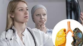 Przełom w leczeniu raka? Rewolucyjny nowy lek DWUKROTNIE efektywniejszy w leczeniu raka piersi, płuc oraz prostaty