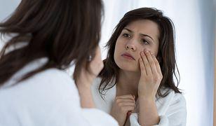 Zakwaszenie organizmu może powodować zmiany skórne.