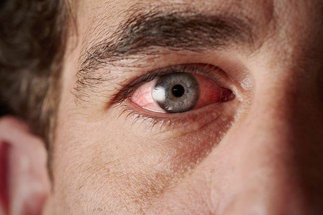 Codzienne nawyki, które niszczą wzrok
