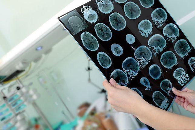 Stymulacja mózgu prądem wybudza ze śpiączki i poprawia intelekt