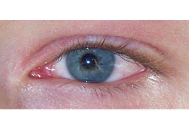 Objawy zapalenia spojówek