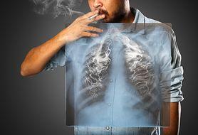 Palisz papierosy? Czy wiesz, czym to grozi? Nasz test wyjaśni wszystko