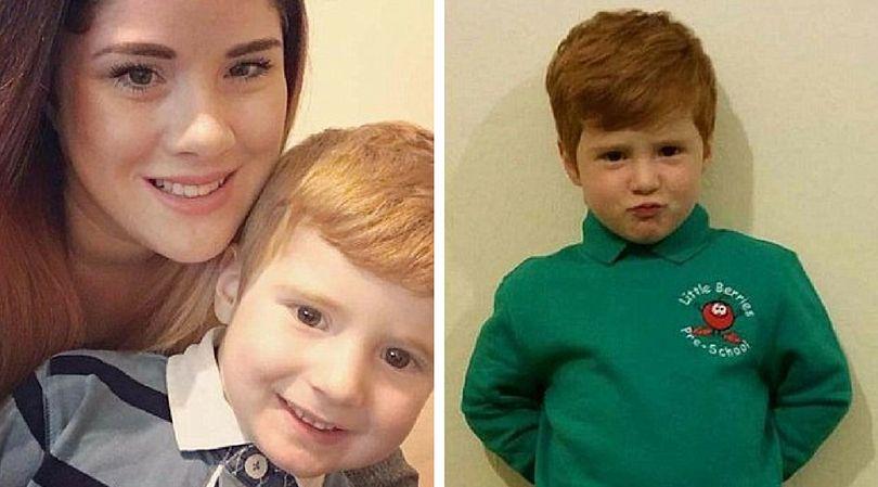 3-letni chłopiec był obiektem drwin ze względu na swój wygląd