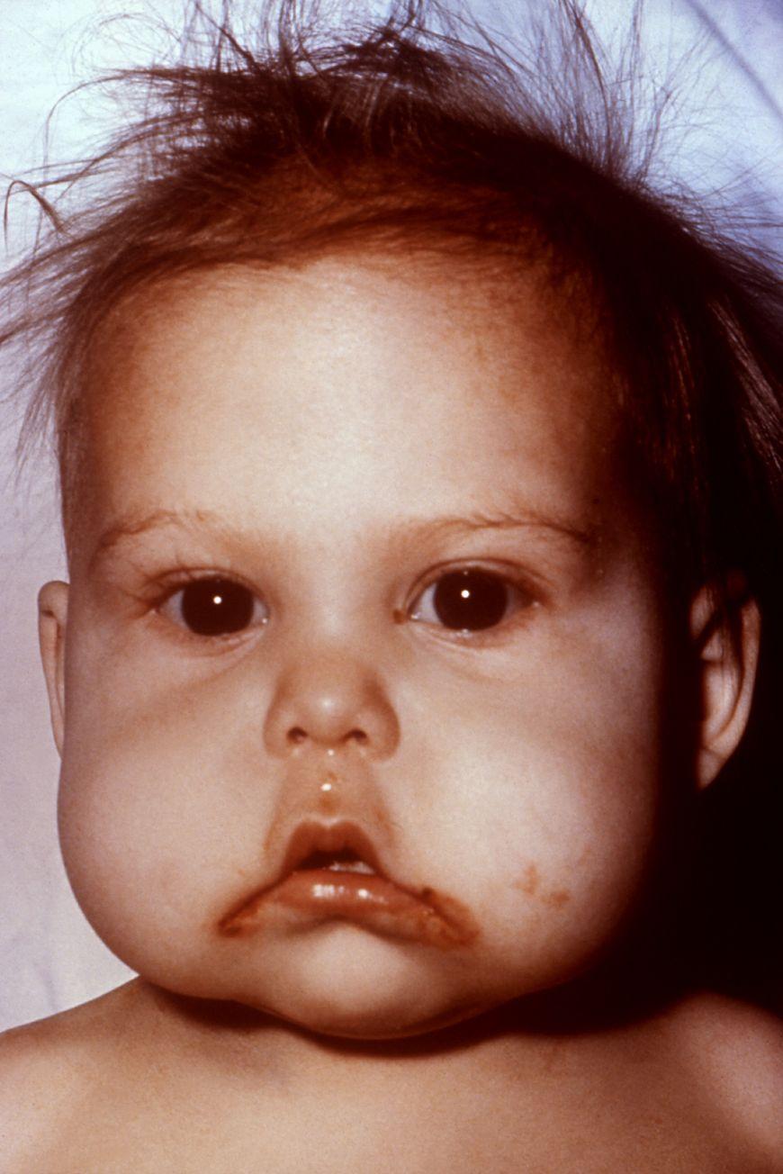 Niemowlę z chorobą kwashiorkor