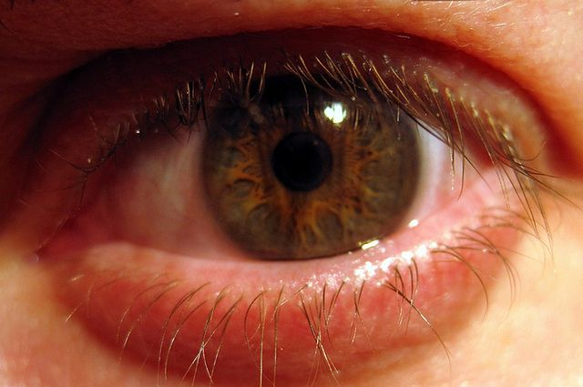 Zaczerwienione oko