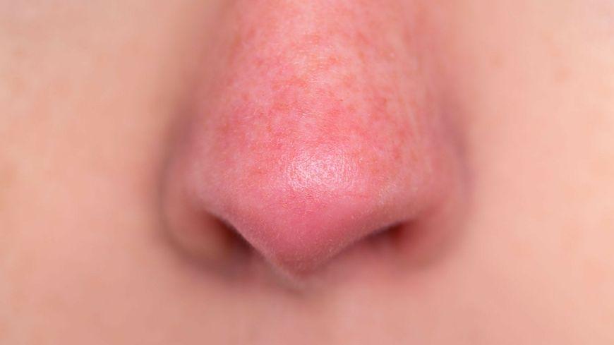 Czerwona skóra w okolicy nosa