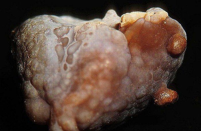 Kamica nerkowa - profilaktyka