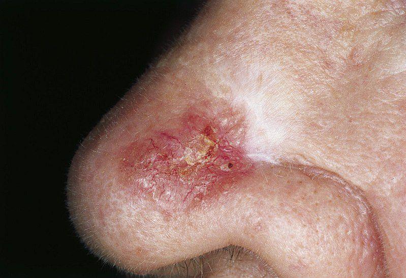 Rak skóry - kolor zmian