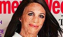 Poparzona kobieta na okładce magazynu