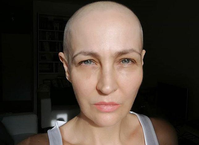 Anna Puślecka choruje na raka. Może liczyć na wsparcie gwiazd