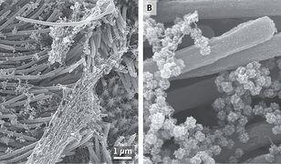 Koronawirus SARS-CoV-2 atakujące ludzki układ oddechowy