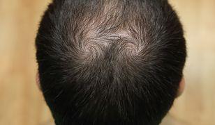 Środek Koreańczyków zwalczy łysienie