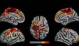 Zmiany w mózgu są wyraźnie widoczne