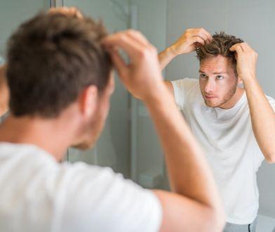Problem z wypadającymi włosami - czy szampon może pomóc?