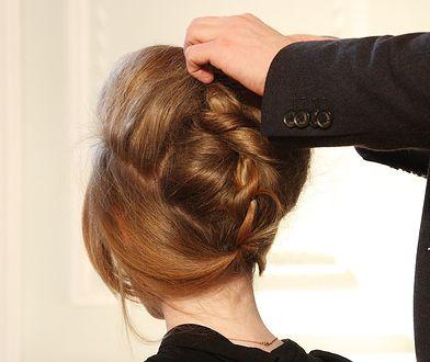 Zaburzenia kreatynizacji skutkują zaburzeniami w obrębie struktury włosów i paznokci